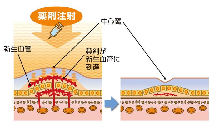 加齢黄斑変性の治療